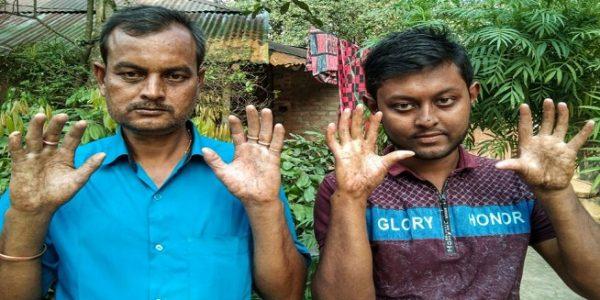 Amal dan Apu Sarker menunjukkan telapak tangannya yang halus tanpa sidik jari (Foto: BBC)